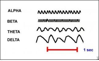 EEG Example of Waves