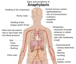 Anaphylactic shock may occur in some extreme (and very rare) cases