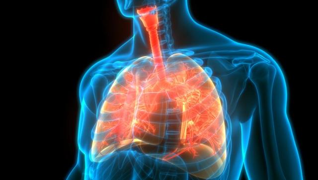 peste pulmonar