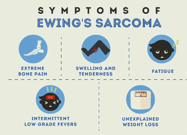 Sign and Symptoms of Ewing Sarcoma