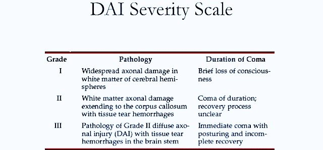 Diffuse Axonal Injury Grading System - PT Master Guide