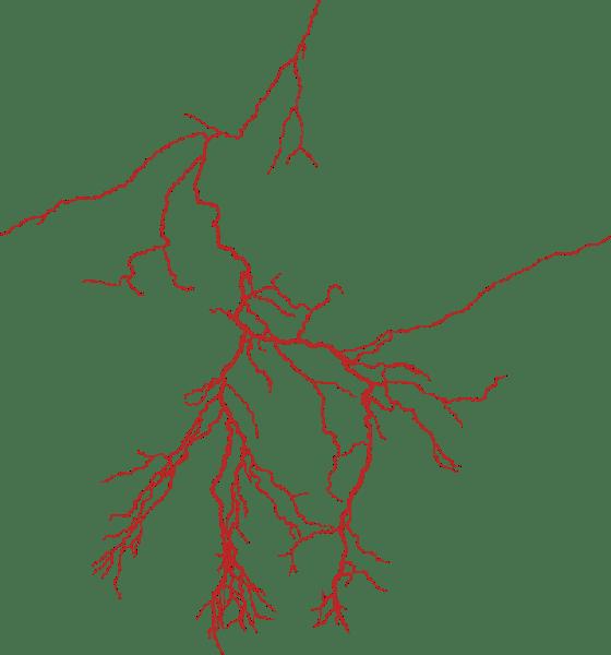 Free Online Capilliary Blood Vascular Halloween Vector For