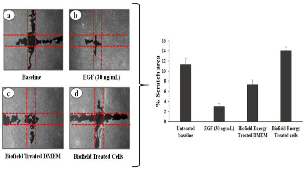 medium resolution of figure 1 cell migration potential of biofield energy treatment on hacat cell line and dmem in scratch assay using wimscratch image analysis