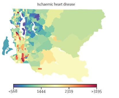 heart disease bigger