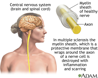 Multiple Sclerosis: Causes, Symptoms, Management