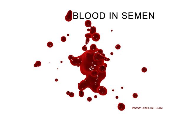 Haematospermia: Blood in Semen: Causes, Treatment