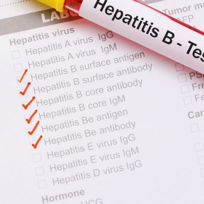Hepatitis B Test, Cost & Where to do Them