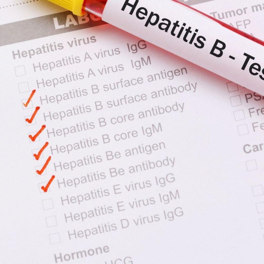 Hepatitis B test