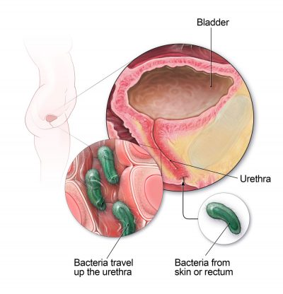 Urinary Tract Infection, UTI: Causes, Symptoms, Treatment