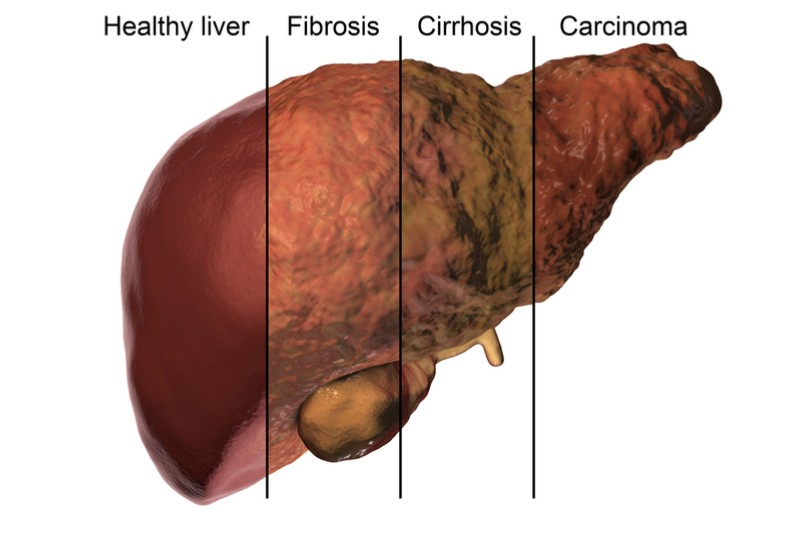 Liver Cirrhosis and Liver Cancer