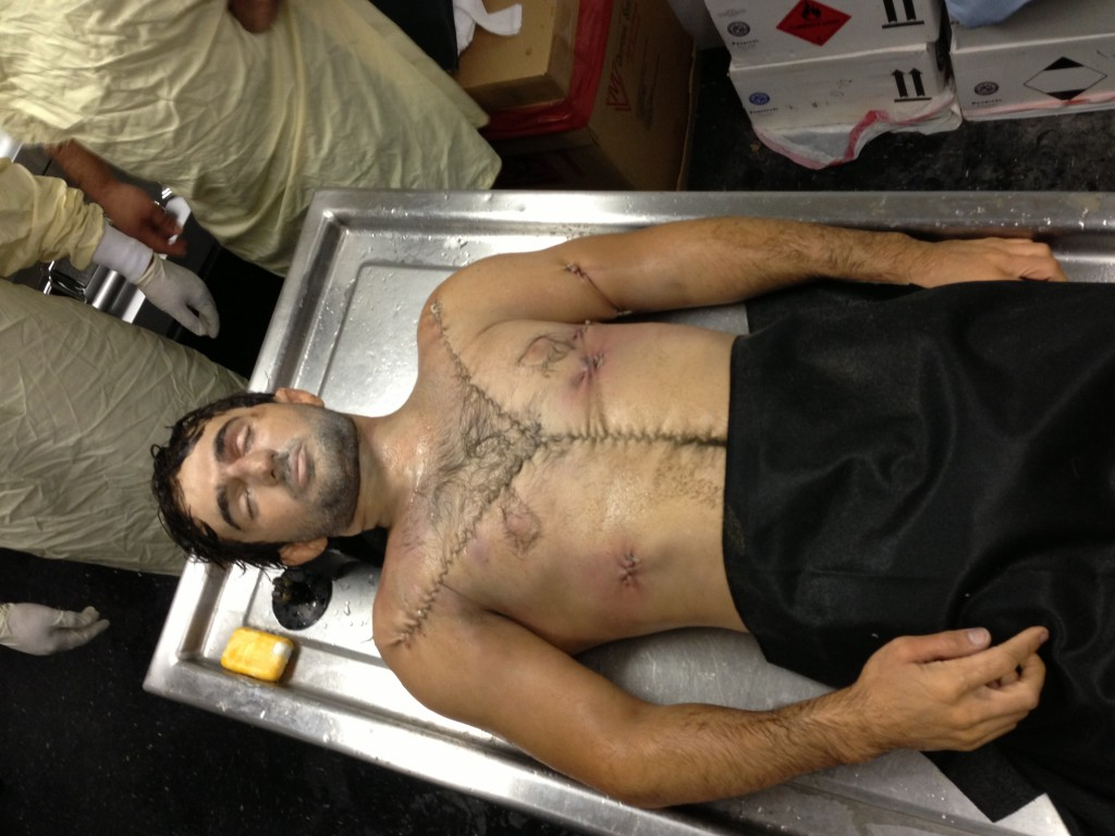 Ibragim Todashev PostAutopsy Body Photos  Public