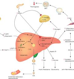 pathophysiological mechanisms involved in the development and complications of nonalcoholic fatty liver disease nafld  [ 3112 x 2623 Pixel ]