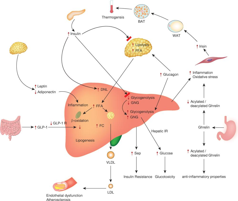 medium resolution of pathophysiological mechanisms involved in the development and complications of nonalcoholic fatty liver disease nafld