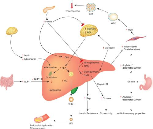 small resolution of pathophysiological mechanisms involved in the development and complications of nonalcoholic fatty liver disease nafld