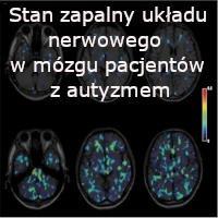 Aktywacja komórek glejowych i stan zapalny układu nerwowego w mózgu pacjentów z autyzmem – Dr Diana L. Vargas