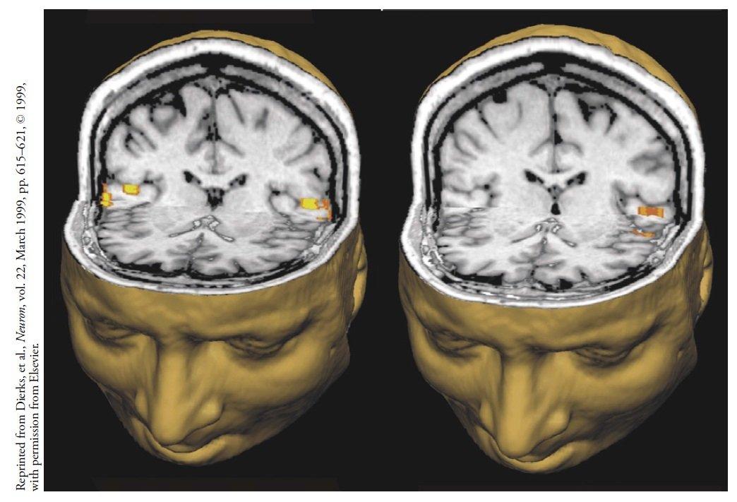 Zakręty Heschla są głównym ośrodkiem przetwarzania dźwięku w mózgu.