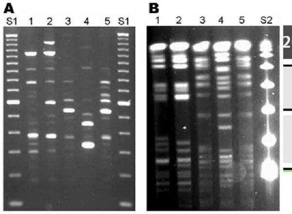 Czy test na COVID-19 miał wykrywać wirusa?