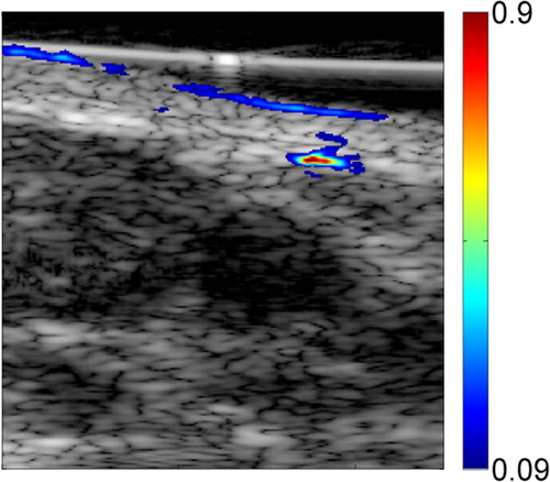 Sentinel Lymph Nodes in the Rat: Noninvasive Photoacoustic and US Imaging with a Clinical US System   Radiology