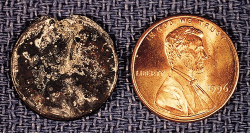 The zinc of pennies being dissolved by stomach acid.