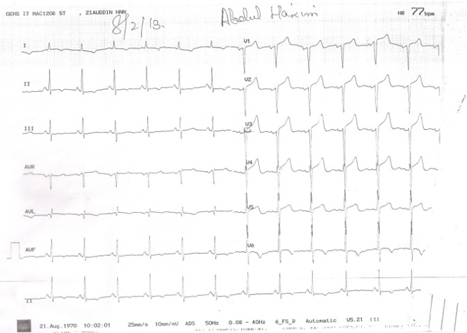 A Rare Presentation of Acute Coronary Syndrome with
