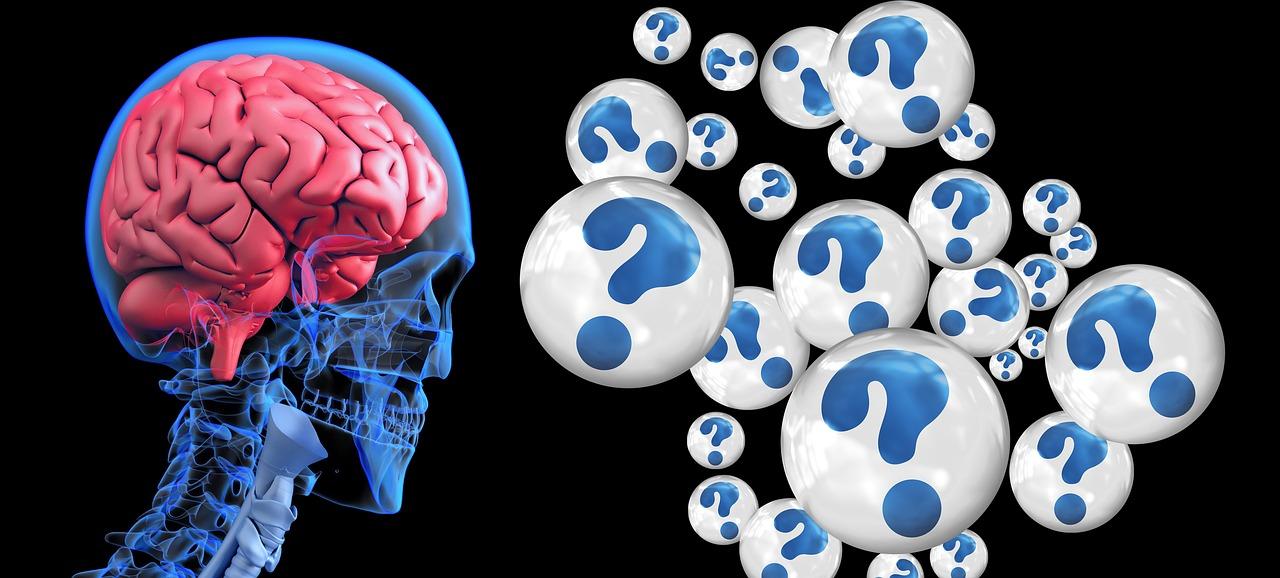 brain-questions
