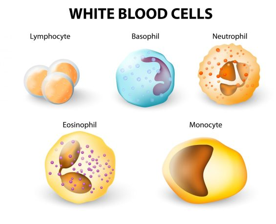 Idiopathic Pulmonary Fibrosis Progression May Depend on White Blood Cell Type - Pulmonary Fibrosis News