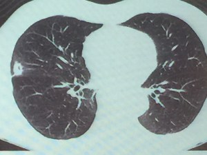Granuloma Necrotizante con Hifas de Aspergillus