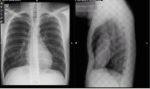 Rx Normal PA y Lateral de Tórax
