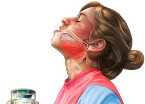 iodură de potasiu din varicoză)