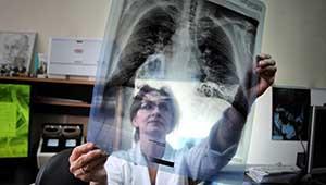 Что означает белое пятно на лёгких. Затемнение в верхней части лёгкого