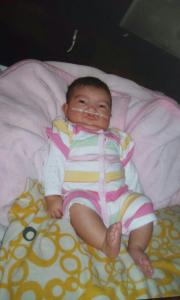 Baby Genesis before her surgeries