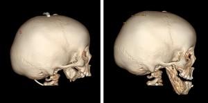 Lexi Skull - CT