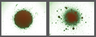 On the left is a microscopic image of thousands of HIV-infected cells after being exposed to normal, unedited T cells. On the right is a microscopic image of HIV-infected cells after being exposed to T cells edited by Drs. Rawlings and Scharenberg. The clumping in the image to the right indicates HIV positive cells are being killed by the edited T cells.