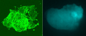 Pathology image (left) of Hunter's tumor glowing with BLZ-100 Tumor Paint and image of how Dr. Lee saw the tumor glow in the operating room (right).