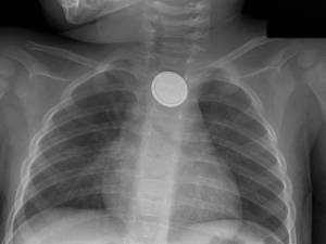 button_battery_X-ray-x-large