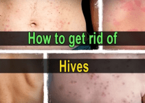 how to get rid of hives fast