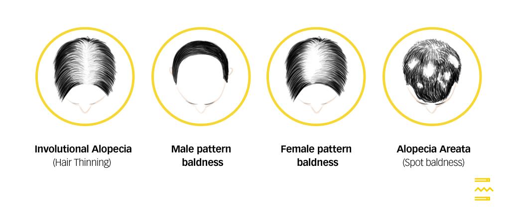 types of hair loss pulse tcm clinic