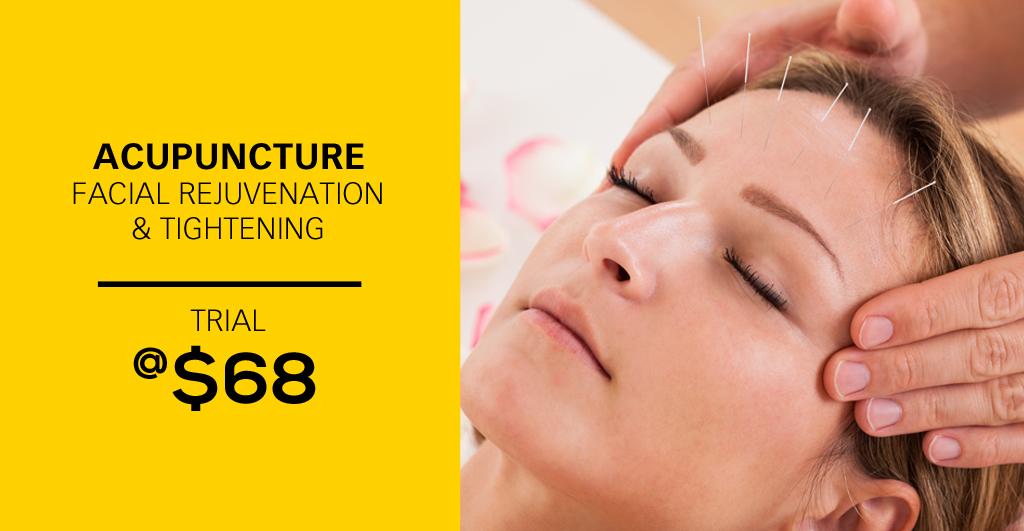 Facial-Acupuncture-trial68