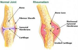 rsumstism