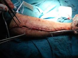 surgery-872389_640
