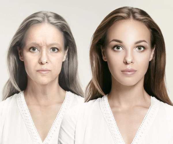 Pureagen collagen