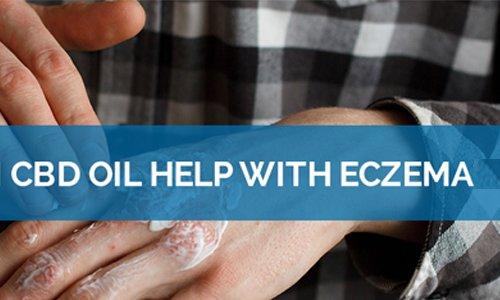 Eczema for CBD