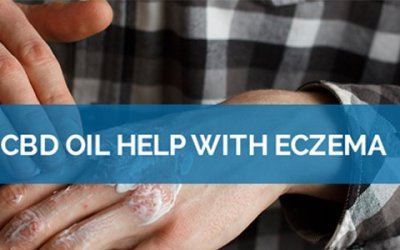 Suffering From Eczema? CBD Could Be The Ultimate Saviour