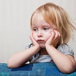 不只兒童會感染。大人也會得水痘!水痘的癥狀、傳染途徑、潛伏期完整介紹! - PureStyle Note