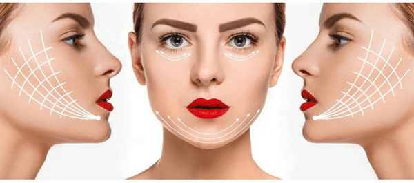 PDO Thread Lift - Non Surgical Face Lift | Pure Wellness & Rejuvenation