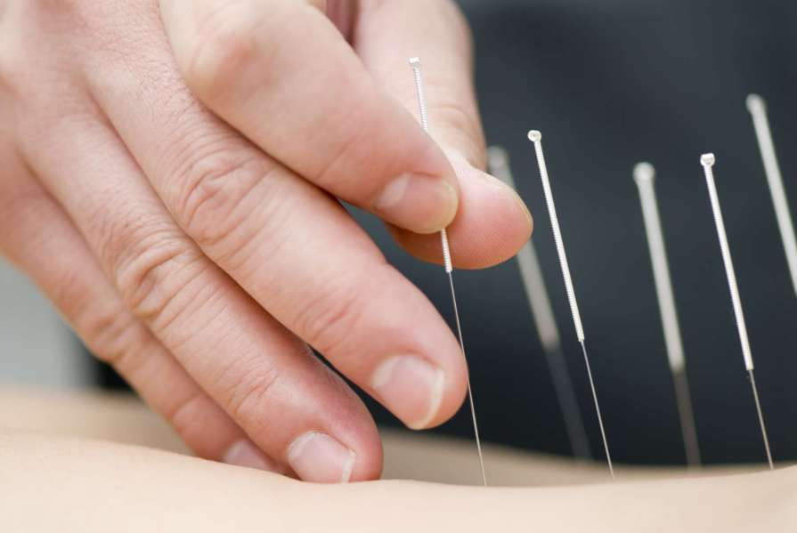 Acupuncture and Chinese Herbs for a Headache relief