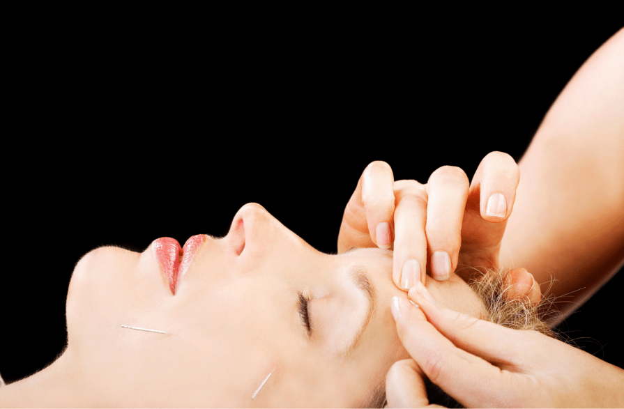 acupuncture facelift in encinitas