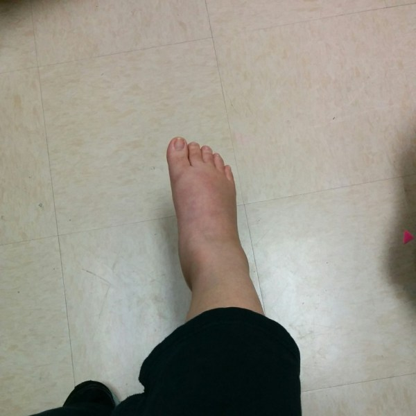 swollen broken ankle