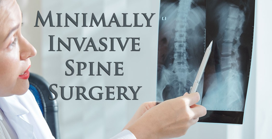 11860 Vista Del Sol, Ste. 128 Minimally Invasive Spine Surgery El Paso, Texas