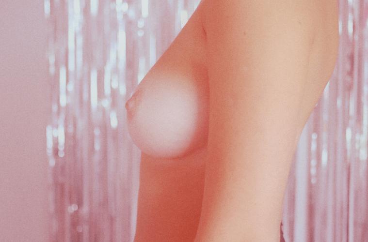 krūties vėžio